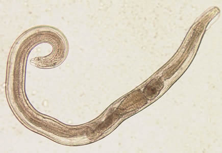 pinworm elsősegély